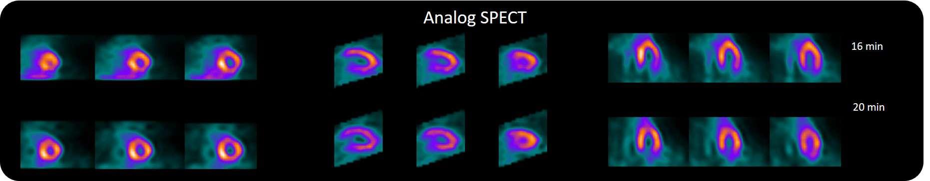 Analog D-SPECT Slider Part2