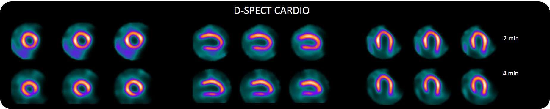 Digital D-SPECT Slider Part1